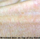 This virus causes finely-wrinkled skin to appear, the wrinkles having a crêpe paper-like appearance.