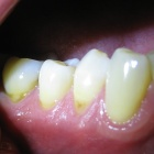 This virus causes a rapid-onset of periodontal disease (receding gums), and increased deposition of brown plaque on the teeth.