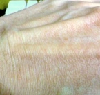 THE FINELY-WRINKLED SKIN ON THE TOP OF MY HAND. This virus causes finely-wrinkled skin to appear on the hands and all over the body, with the wrinkles having a crêpe paper-like appearance.